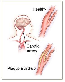surgery-disease_CAD